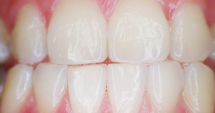 endodoncja, zęby, dentysta